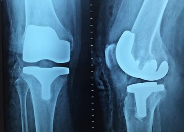 Physical activity levels after hip and knee joint replacement surgery: an observational study
